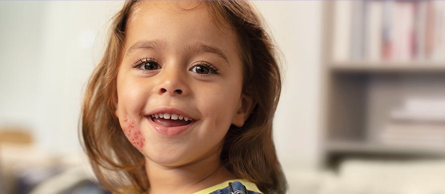girl smiling with eczema on right cheek