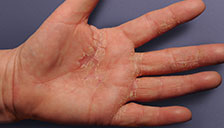 real photo of eczema on left hand