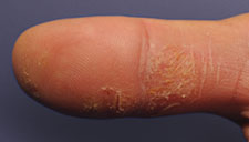 real photo of eczema on thumb